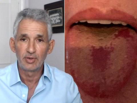 'Covid tongue' becoming more widespread as coronavirus symptom