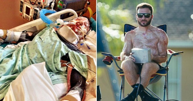 Matt Manzari survived the ordeal