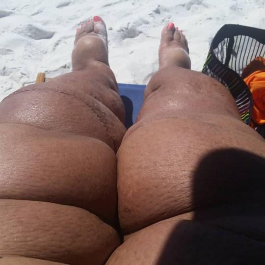 Monique Samuels showing her swollen legs