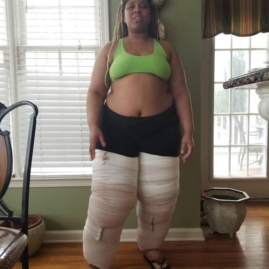 Monique Samuels showing her swollen legs in wrappings.