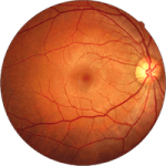 Retina: Care to Cure!