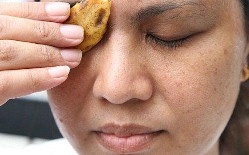 Απομακρύνετε φυσικά τα θηλώματα - Γυναίκα εφαρμόζει φλούδα μπανάνας στο βλέφαρο