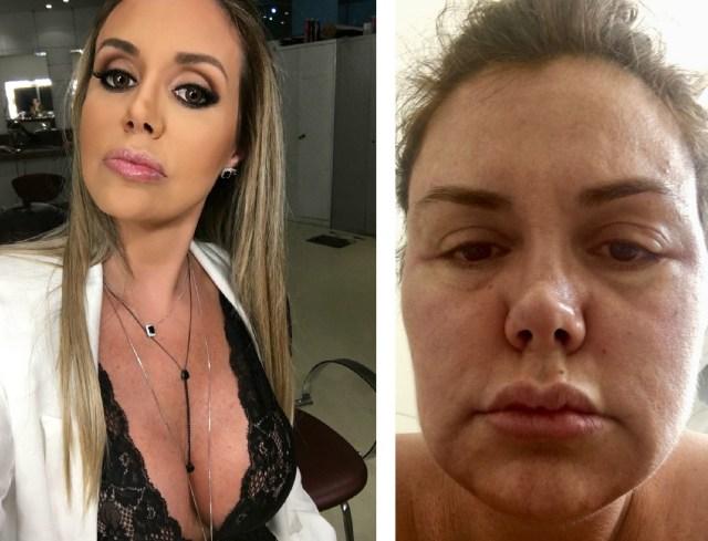 Renata Banhara e o rosto inchado durante processos inflamatórios da infecção no rosto (Foto: Acervo pessoal)