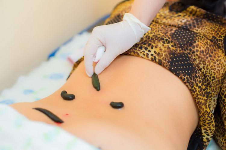 Sülük tedavisi (tıbbi sülük), hirudotherapy özellikleri