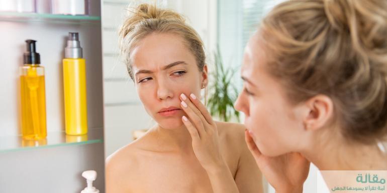 ماسكات طبيعية لعلاج احمرار الوجه بعد التشقير