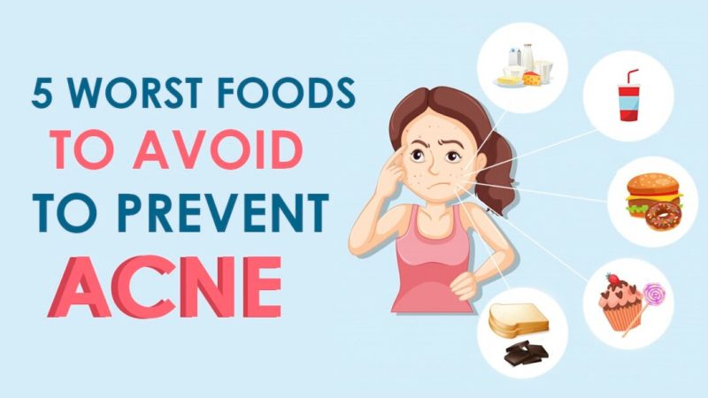 5 Worst Foods to Avoid to Prevent Acne