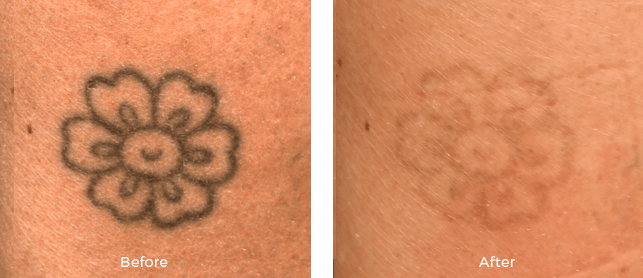 tattoo removal without scar: Tattoo Removal Center In Delhi