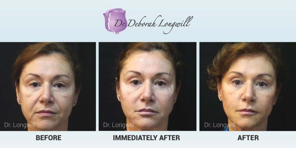 Kybella Treatment in Miami