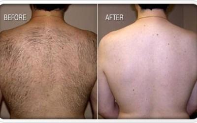 Laser Hair Removal Miami FL
