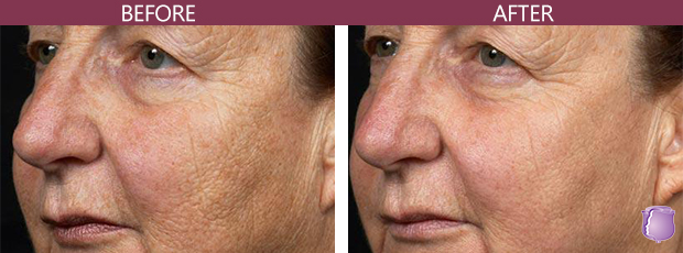 Skin Resurfacing Treatments in Miami , skin resurfacing treatment
