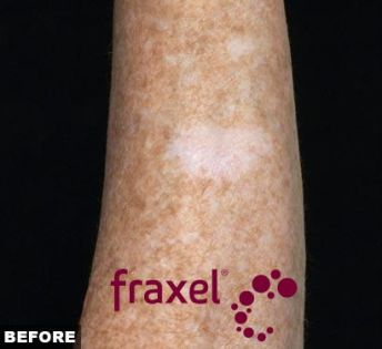fraxel dual before with logo