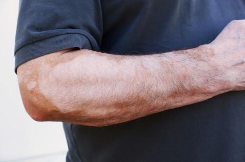 Tinea Versicolor Fungal Infection