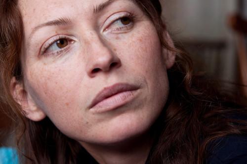 Melasma Skin Lightening Treatment