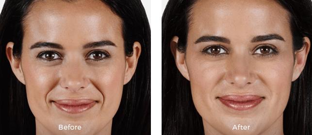 Miami Center For Dermatology Cosmetic Dermatology Juvderm