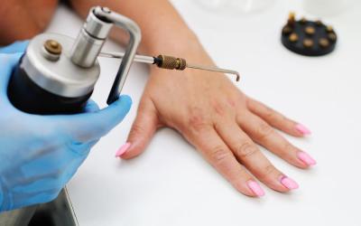 Most Effective Wart Treatment