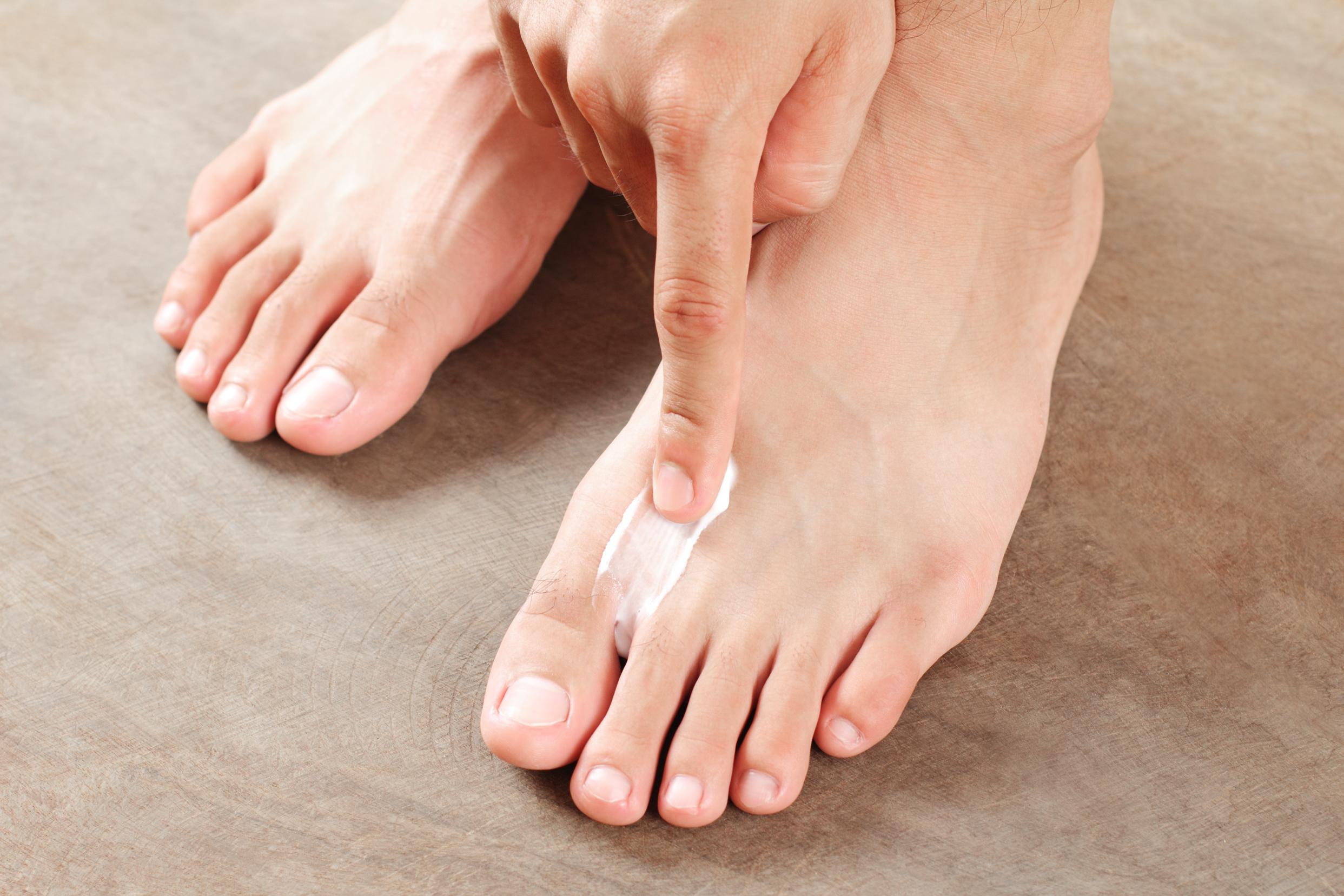 Athletes Foot Treatment