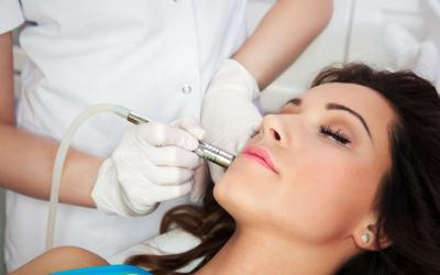 Laser Acne Removal Treatment