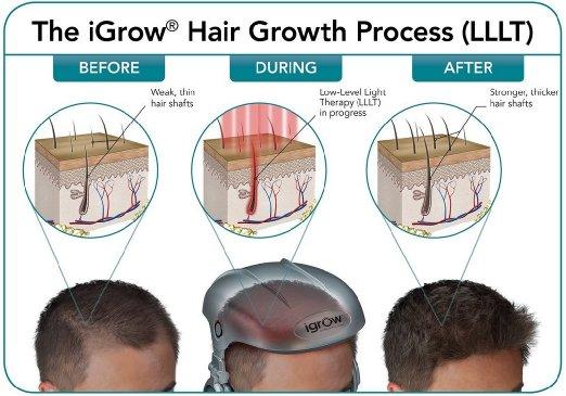 Igrow Capacete A Laser Para Calvicie2