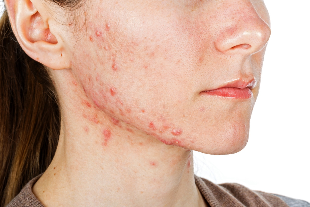 What Causes Hormonal Acne? - Greater Miami Skin and Laser Center
