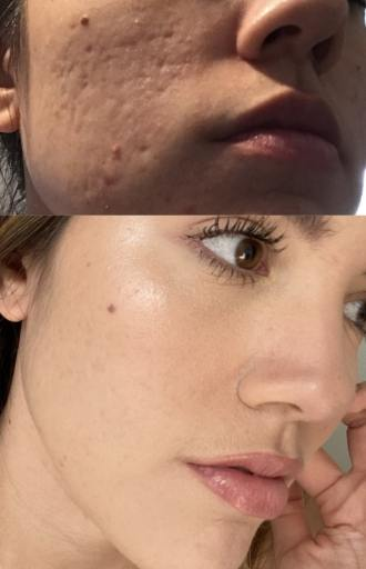 example of how microneedling gets rid of ance scars