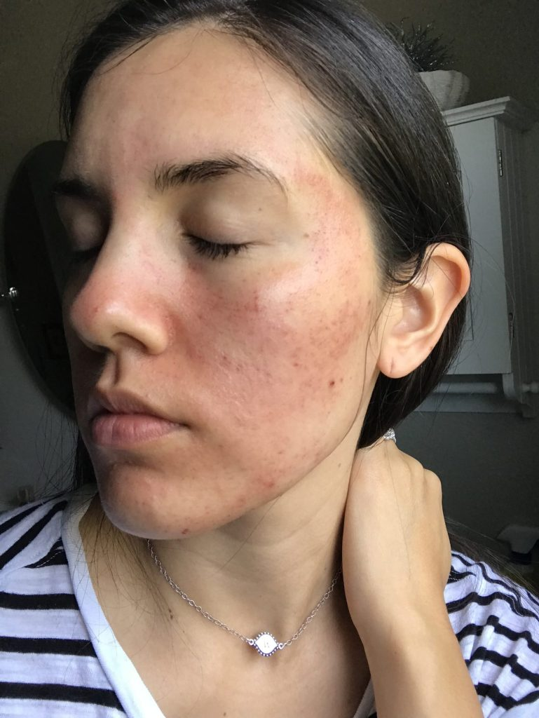 get rid of acne scars with Microneedling review before and after