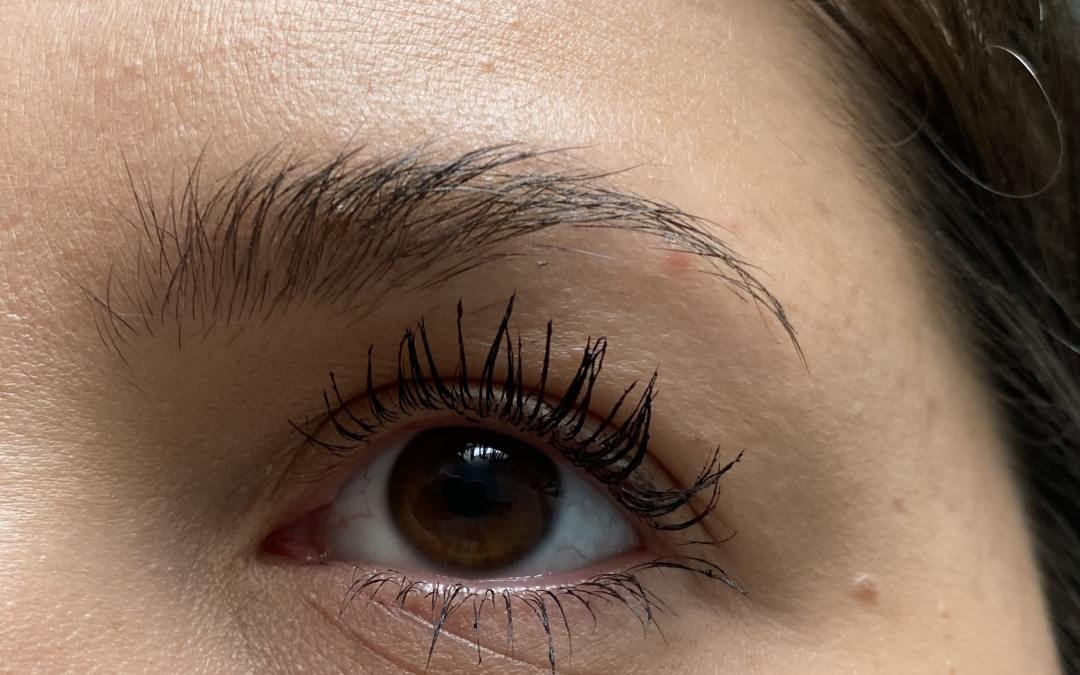 Pimples In The Eyebrows: Treatments + How To Avoid Them [Guide]