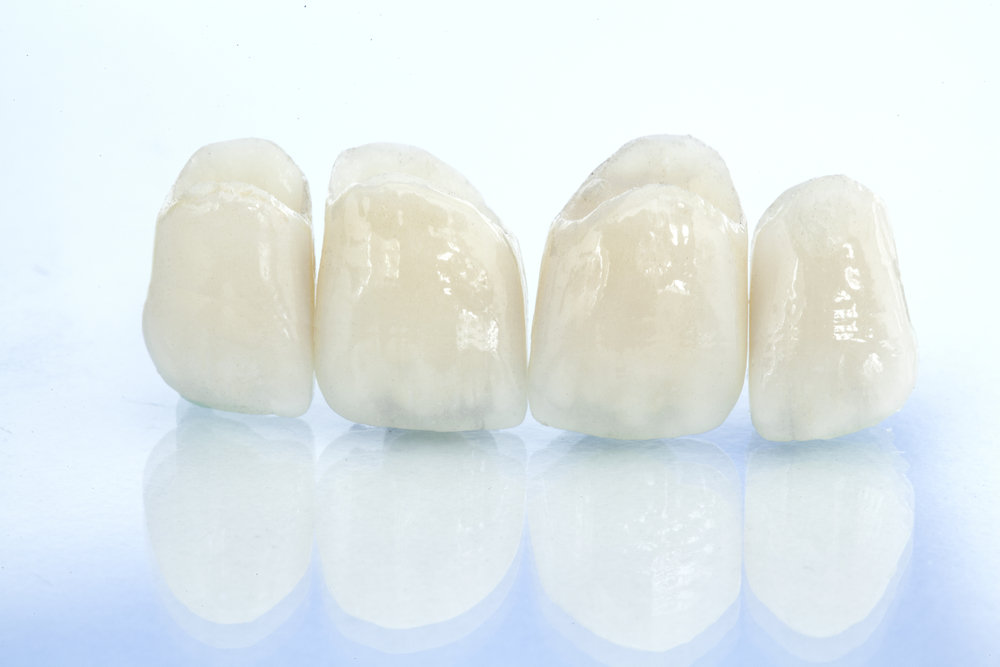 dental crowns - 9 reasons you might need one michael sinkin