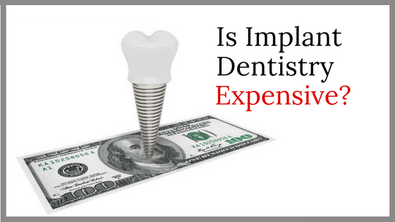 Is Implant Dentistry Expensive?