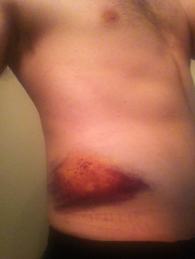 Bruises from Powderhorn 24 Bike Race accident. Minneapolis, MN, USA.
