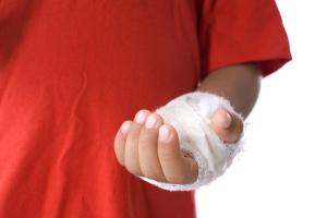 Burn Injury Accident
