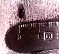 Appréciez la petitesse de l'implant...