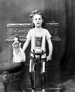Un enfant avec des jambes artificielles en 1893.