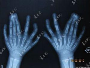 Radiographie des mains.