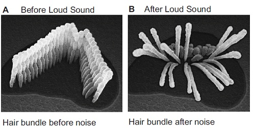 in picture a you can see a normal grouping of hair cells inside the cochlea they will move properly when they hear a sound thus resulting in normal