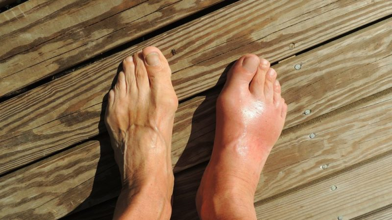 Truth About Gout………. Interview