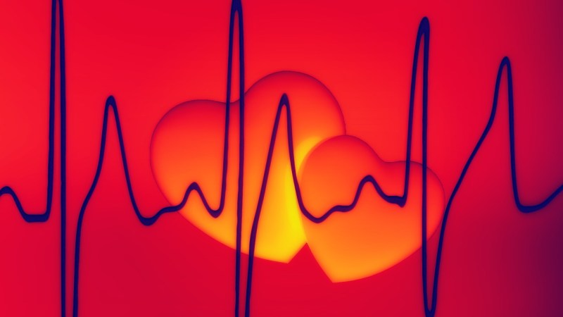 Many Aging Americans Unfamiliar with AFib and Stroke Risk {Interview}