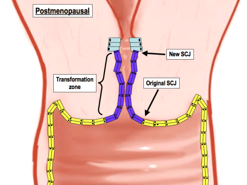 The transformation zone becomes hardly visible on the ectocervix. The original SCJ returns close to where it was premenarche.