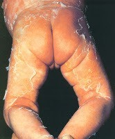 scalded skin syndrome (also known as Pemphigus neonatorum or Ritter's disease)