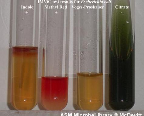 IMViC Test results of Escherichia coli