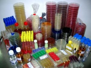 Different types of Bacteriological culture media used in Microbiology lab