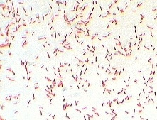 Gram Stain Reaction of E.Coli
