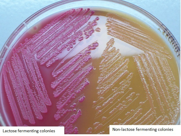 MacConkey Agar (MAC): Composition, preparation, uses and colony characteristics
