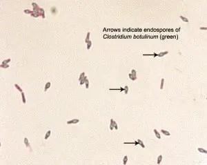 Spore of Clostridium botulinum Source: ASM