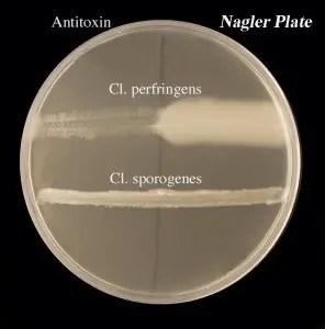 Naglers-reaction-of-Cl.-perfringens