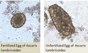 Egg of Ascaris in Wet Mount
