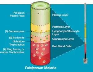 Falciparum malaria in QBC Test