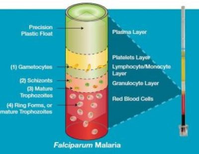 Falciparum malaria in QBC Test