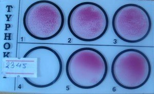 Widal Test: Quantitative test for H antibody (Serial double dilution order from 1-2-3-6-5)