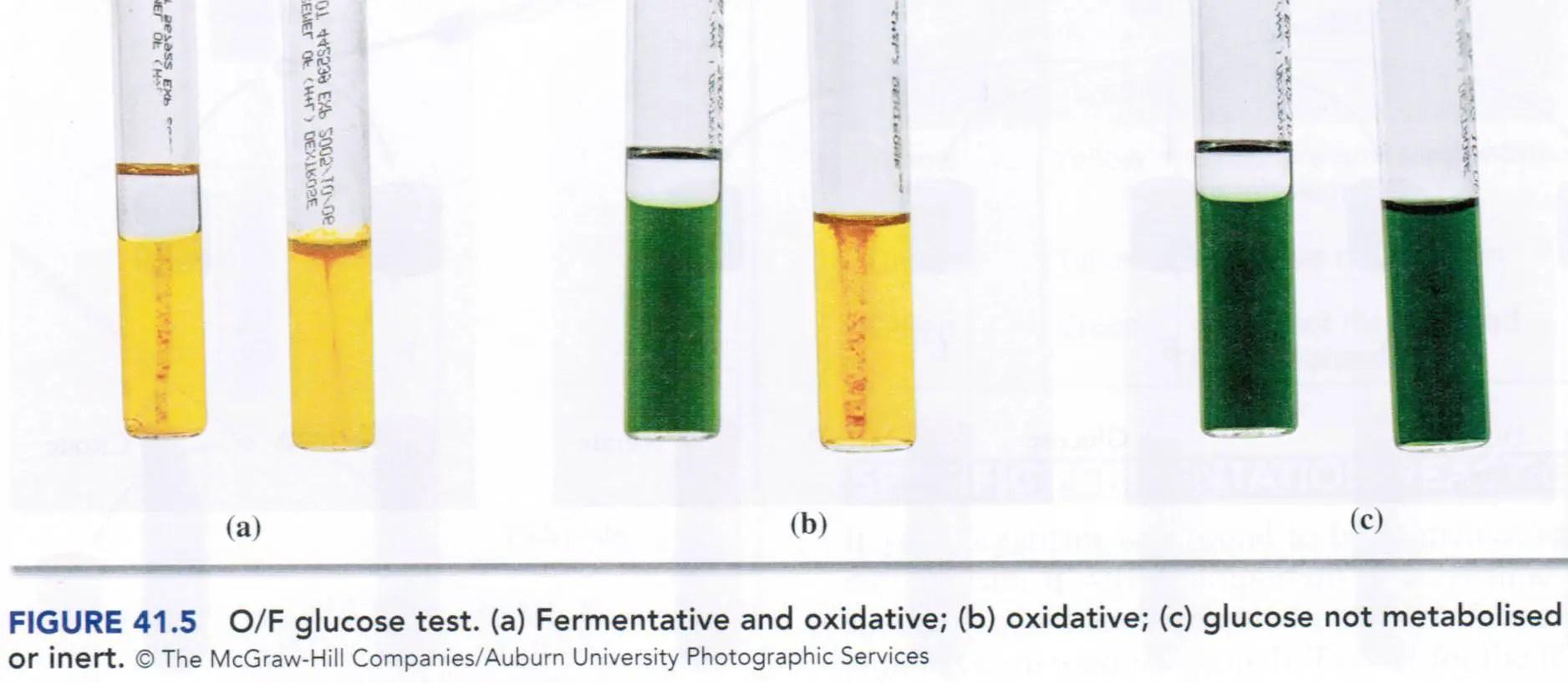 Oxidative fermentative (OF) test: Principle, procedure and
