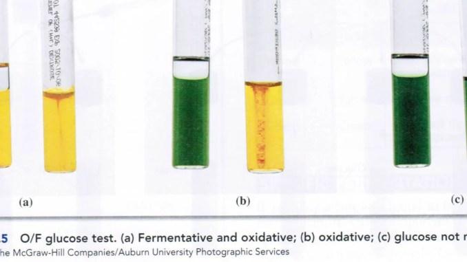 Oxidative Fermentative OF Test Principle Procedure And